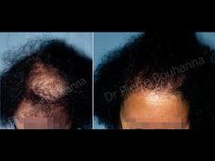 Jus D'Oignon pour la pousse des cheveux - YouTube