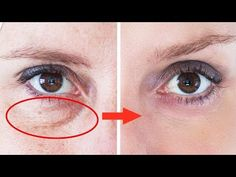 Dark circles under the eyes is a problem that's familiar to almost everyone. Face Care, Body Care, Skin Care, Diy Beauty, Beauty Hacks, Diy Spa Day, Dark Circles Under Eyes, Les Rides, Tips Belleza