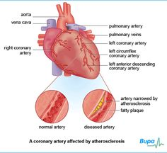 An illustration showing a coronary artery affected by atherosclerosis - click for more information about the heart
