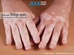 Have your #Vitiligo spots been a reason for your losing confidence? Even with a huge amount of information available online, Vitiligo is still a taboo for many people, which in turn has a negative impact on the affected individual. Visit us at #ZolieSkinClinic and give yourself the care you deserve with our team of experts implementing the latest technologies in skin care and health.
