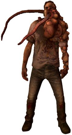 This is a Left 4 Dead 2 smoker. He is the same as a Left 4 Dead smoker only his appearance has changed