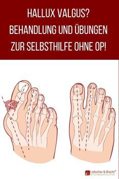 Hallux valgus - relieve pain when the big toe has a life of its own - . - Hallux valgus – relieve pain when the big toe has a life of its own – - Workout Dvds, Tabata Workouts, Wellness Fitness, Health Fitness, Health Benefits, Health Tips, Blog Love, Keto Diet For Beginners, Body Care