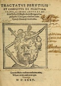Cranial injuries. Jacopo Brengario da Carpi. 1535. Tractatvs pervtilis et completvs de fractvra cranei. Jacobus Berengarius Carpensis - Title page. Enlarge: https://www.pinterest.com/pin/287386019949246183