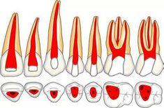 Access opening for maxillary permanent teeth. Dental Hygiene Student, Dental Art, Dentist Reviews, Dental Anatomy, Dental Posters, Medicine Student, Root Canal Treatment, Orthodontics, Dental Health
