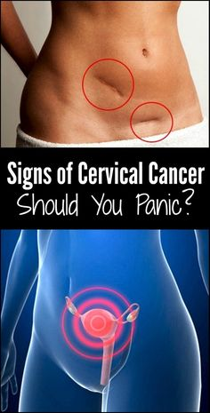 Signs of cervical cancer, should you panic? People often panic just speaking and thinking about cancer; after all, cancer is a deadly disease. However, the good news is that cervical cancer falls i… Cervical Cancer Stages, Cervical Cancer Ribbon, Ovarian Cyst Symptoms, Ovarian Tumor, Cervical Cancer Tattoos, Signs Of Ovarian Cancer, Hormonal Changes, Types Of Cancers, Cancer Facts