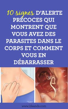 {human parasites, what are they and symptoms and signs to identify Liver Fluke, Colon Irritable, Parasite, Bile Duct, Mortality Rate, Homemade Cleaning Products, Save My Life, Signs, Miracle Cleaner