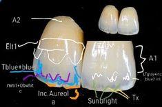 Dental Life, Dental Art, Dental Teeth, Dental Hygiene, Soap Note, Orthodontic Appliances, Dental Anatomy, Dental Technician, Dental Laboratory