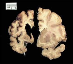 Macroscopic image in which a slice of Huntington's                                brain (left) is put next to a slice from a normal                                control (right).