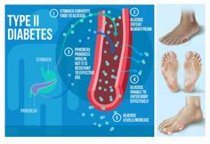The Everyday Habit That Makes You 47% More Likely To Develop Diabetes  http://www.healthyfitlifetime.com/healthy/everyday-habit-makes-47-likely-develop-diabetes/
