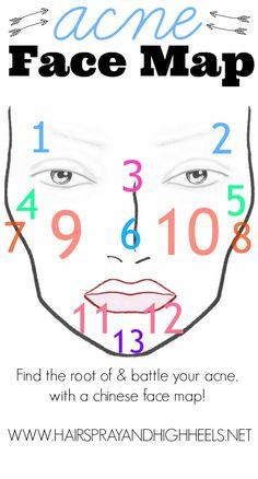 Acne Face Mapping a type of chinese medicine used today that explains how and why certain parts of your face that have acne.