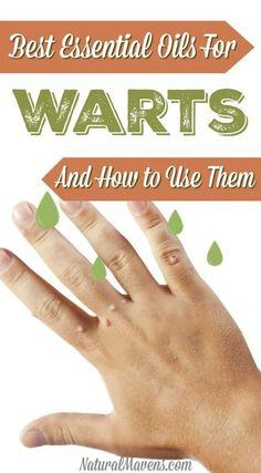 Wart Essential Oils