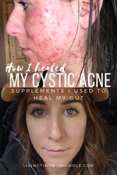 Cystic Acne Treatment, Cystic Acne Remedies, Vitamin A Acne, Acne Reasons, Acne Causes, Hormonal Acne, Acne Prone Skin, Gut Health