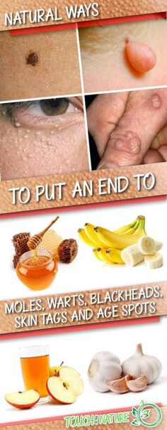 Do you have problematic skin? Skin tags, moles, warts, age spots and blackheads are only a part of more than 3000 skin conditions that occur to people on a daily basis. A change of the texture or t… Natural Cures, Natural Skin, Natural Health, Health Remedies, Home Remedies, Healthy Tips, Healthy Skin, Warts On Face, Facial Warts