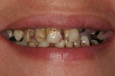 Rotten Teeth From Soda Related Keywords & Suggestions - Rotten ...