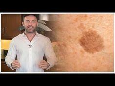 Conoce como este dermatólogo logró encontrar un remedio natural con el que puedes eliminar por completo las manchas de la cara o piel