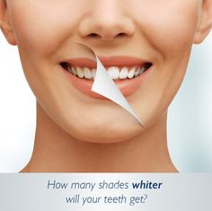 For the month of December, 50% off of Phillips Zoom in-office whitening. Regular $450 now just $225 SUPER DEAL!!! cal now to schedule 704-376-6470 use promo code: WHITE CHRISTMAS #charlottedentistry #holidayspecial #zoom #whiteteeth