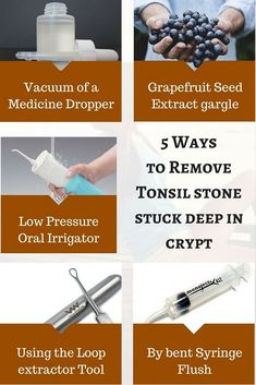 How to remove Tonsil stone stuck deep in crypt? Tonsilitis Remedy, Tonsil Stone Removal, How To Get Rid, How To Remove, Tonsil Stones, Extractor Tool, Strep Throat, Bad Breath, The Cure