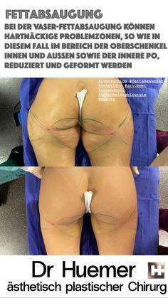 siehe Text Liposuction, Swimwear, Top, Double Chin, Ultrasound, Wels, Self Awareness, Thigh