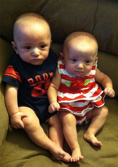 Micro-Preemie 1LB Twins are Now Healthy Thanks to March of Dimes!