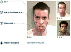 Before & After Drugs (Meth): The Horrors of Methamphetamine Infographic