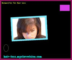Dermaroller For Hair Loss 152906 - Hair Loss Cure!