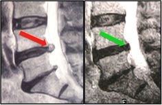 Case Study 108 - Herniated Disc and Sciatica Treatment #IllinoisBackInstitute #TotalBackPainRelief #NoDrugsOrSurgery