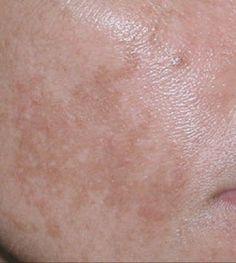 Trucos caseros para quitar manchas de la piel