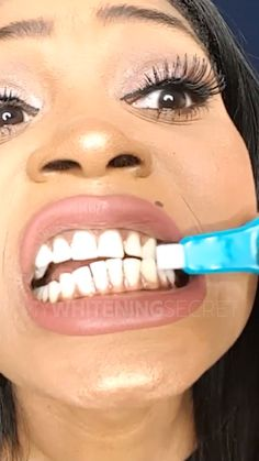 The nano pro teeth whitening kit is a revolution in teeth cleaning and whitening. - The nano pro teeth whitening kit is a revolution in teeth cleaning and whitening. Using new nano-tu - Natural Teeth Whitening, Whitening Kit, Skin Whitening, Teeth Care, Skin Care, Face Care, Body Care, Brown Spots On Face, Skin Moles