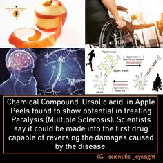 Scientific Inventions, Neurons, Multiple Sclerosis, Drugs, Knowledge, Treats, Apple, Nerve Cells, Sweet Like Candy