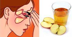 Sinüzit ve Migren… Sirkeli suyla en fazla 15 günde bitiyor… |