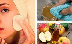 Gesichtsreinigung mit Apfelessig über 5 Tage – Probiere und staune!