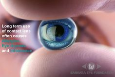 Long term use of contact lens often causes allergies, eye dryness and intolerance. Lasik is the best alternative. 40 million Lasik procedures have been done worldwide since 1997. Millions enjoy freedom from contact lens. #Lasiksurgery #Lasik