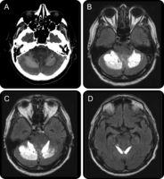 Bilateral cerebellar hemorrhage in vermian vein thrombosis