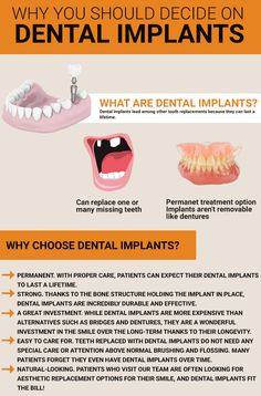 Dental implants are tooth root replacements. These are fabricated with titanium, a metal that is biocompatible with the body and safe to use. Find out more about dental implants today! Oral Health, Dental Health, Dental Care, Best Dental Implants, Teeth Implants, Tooth Replacement, Implant Dentistry, Missing Teeth, Ignorant