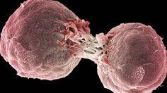 Inmunoterapia: El tratamiento contra el cáncer que sustituirá a la quimioterapia   Ciencia   EL PAÍS