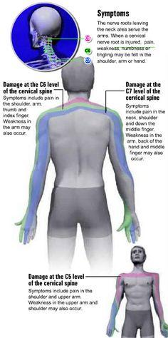 cervical radiculopathy | Nervio Pinchado En La Cervical http://saludmedica.gimlax.com/post ...
