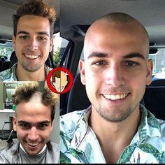 Best Short Haircuts, Haircuts For Men, Bald Haircut, Short Hair Cuts, Short Hair Styles, Barber Shop Haircuts, Bald Men Style, Bald Look, Buzzed Hair