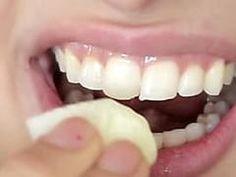 Dental whitening treatment easy teeth whitening,local teeth whitening mobile teeth whitening,opalescence whitening teeth whitening options at dentist. Teeth Care, Skin Care, Beauty Secrets, Beauty Hacks, Cute Diy Projects, Best Teeth Whitening, Take Care Of Your Body, Hair Loss Remedies, White Teeth