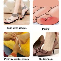 US$ 40.98 - Glue Free Toenail Patch - m.dunpie.com Ugly Toenails, Remedies For Tooth Ache, Damaged Nails, Pedicure At Home, Ingrown Toe Nail, Nail Repair, Nail Growth, Short Nails Art, Skin Products