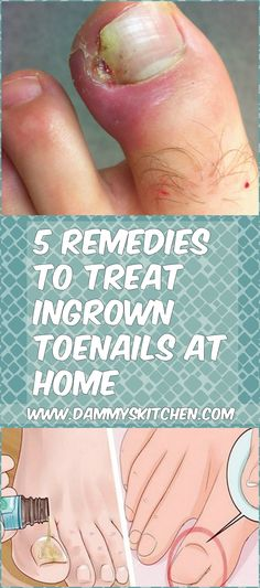 5 Remedies To Treat Ingrown Toenails At Home #health #ingrownnails #toenails #remedies