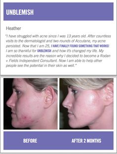 Unblemish before and after picture. By Rodan and Fields for acne and post acne marks. https://nwindsor.myrandf.com/Shop