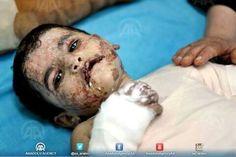 Stop the Israeli massacres in Gaza. # كلنا حماس.
