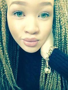 Stunning Photos Of Very Beautiful Albino Ladies - Fashion - Nigeria Albino Girl, Albino Model, Blue Green Eyes, Albinism, Black And Blonde, Dark Skin, Freckles, Amazing Photography, Womens Fashion