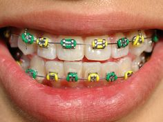 Dental braces and wisdom teeth extraction: What do I need to know? Dental braces and wisdom teeth extraction: What do I need to know? Fake Braces, Braces Tips, Kids Braces, Dental Braces, Teeth Braces, Dental Implants, Dental Care, Green Braces, Tips