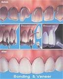 Tooth bonding is the application of a tooth-colored resin material using adhesives and a high intensity curing light. The procedure gets its name because materials are bonded to the tooth. Bonding is typically used for cosmetic purposes to improve the appearance of a discolored or chipped tooth.