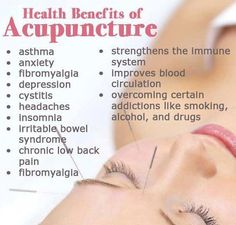 Acupuncture-All Facts You Need To Know