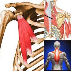 Patient today with neck and shoulder pain. Her pattern is one I see all the time. She is a graphic designer and a cyclist, so work and play both involve being hunched over. ♀️ This position makes the pectoralis minor (left pic) lock up, which essentially turns off the rhomboids and mid traps.  With everything in modern life - driving, working, texting, etc. reinforcing that pattern, these back muscles never get to activate and the brain sort of loses them off its map.   When I showed her…