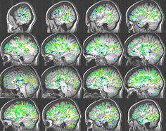 4  הארטת חדשות על אורגזמה נשית הדמיית המוח של סקאל בעת הניסוי. עוד ועוד חלקים במוח מצטרפים, וברגע האורגזמה (צד שמאל למטה) נרשמה פעילות ביותר מ-30 אזורים