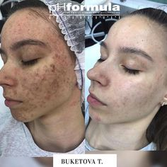 Excellent acne skin resurfacing results from our pHformula skin specialists in Russia. - thank you for sharing Skin Resurfacing, Skin Specialist, Detox Your Body, Younger Looking Skin, Peeling, Blackhead Remover, Acne Skin, Reduce Inflammation, Beauty Skin