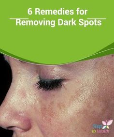 6 Remedies for Removing Dark Here are six natural that are great for dark spots, blemishes and other on your Natural Acne Remedies, Home Remedies For Acne, Skin Care Remedies, Blemish Remedies, Scar Remedies, Deodorant, Acne Scars, Acne Skin, Oily Skin